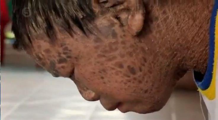 Povestea băiatului-PEŞTE, cu pielea acoperită de solzi. Medicii nu pot să-l vindece