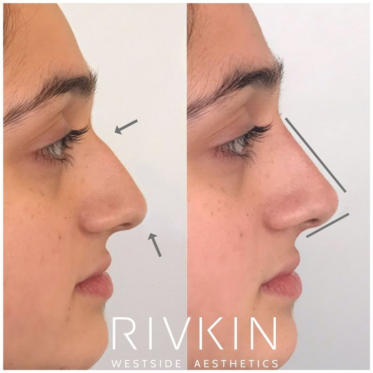 Before and After 5 Minute Nose Job 🤯 Beautiful, natural
