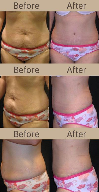 10 best The Art of Cosmetic Surgery images on Pinterest ...