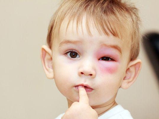 Hausmittel für Kinder: Insektenstiche !  HIER LESEN: http://www.mamiweb.de/familie/hausmittel-fuer-kinder-insektenstiche/1  #hausmittel #insektenstich #insektenstiche #kinder #allergie #bienenstich #wespenstich #wespenallergie #tipps