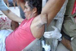 GL-O portal de noticias de Alagoas e do Mundo: Em Paulo Afonso, homem cai de calçada e tem barra ...