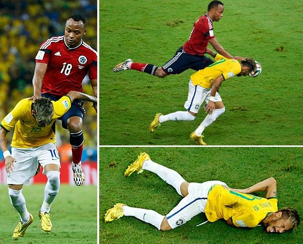 Neymar sofre fratura na vértebra, está fora da Copa, mas segue com o grupo Camisa 10 foi avaliado em hospital de Fortaleza após sofrer pancada de colombiano e recebeu diagnóstico de lesão grave. Apesar disso, craque continuará com a delegação