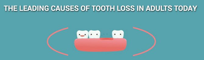 There are many reasons for tooth loss in adults. Some of them are, Calcium deficiency, trauma, not going for #dental #check ups. Call us at 280040055 and fix the date with Dr Tony Saad to know more.