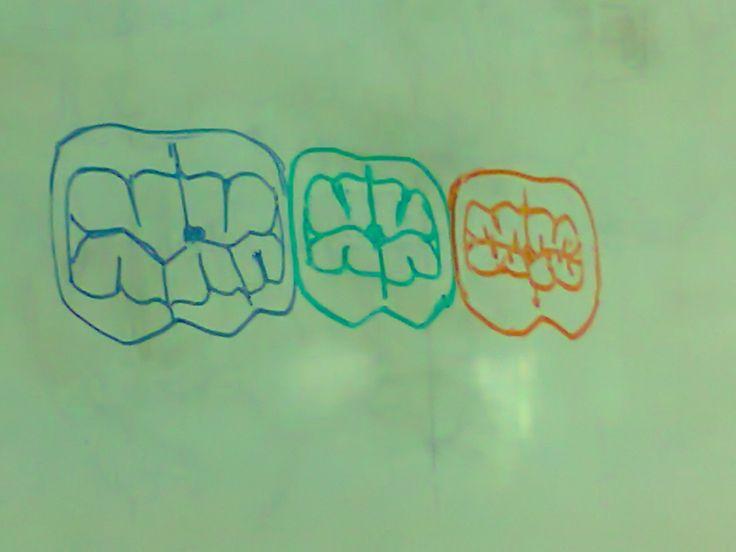 caras oclusales, molares mandibulares