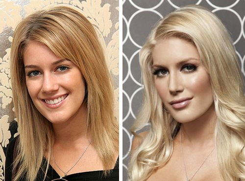 HEIDI MONTAG:  before and after her facial surgeries