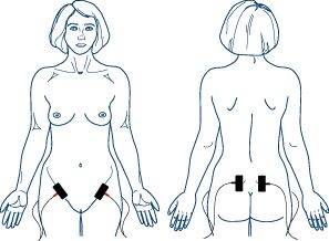 TENS Electrode Placement for Menstrual Cramps | Great website showing TENS placement for a variety of conditions.