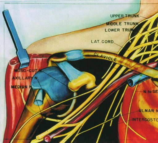 Illustration of dissection of the brachial plexus and the axillary vessels :: Orthopaedic Surgical Anatomy Teaching Collection