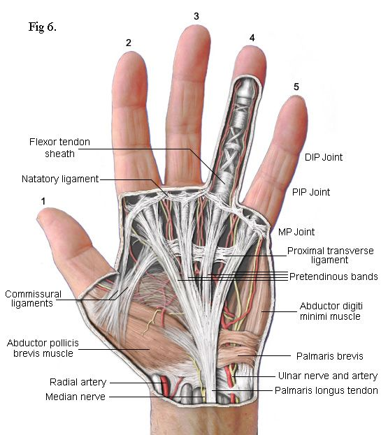 Dupuytren's Recurrence flexor muscles and Tendons of left Hand
