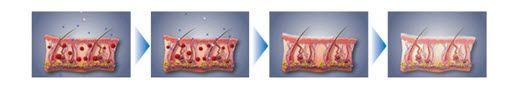 Rezultati Silverex tuša najbolje su vidljivi kod  •Osoba koje imaju problema s kožom (psorijaza, seboreja, dermatitisi, crvenila i sl.)  •Osoba koje imaju osjetljivu kožu ili kožu sklonu aknama