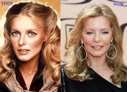 Cheryl Ladd Plastic Surgery Was a Great Success