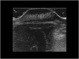 Capillary hemangioma with a partly hyperechoic and partly hypoechoic hypervascularized mass on the skull