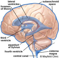 The Foramen of Monro is the eponym for the Interventricular Foramen, the short passage that descend medially and laterally from the lateral ventricles of the brain to connect to the third ventricle.  As part of the ventricular system, they contain cerebrospinal fluid and a portion of the choroid plexus.  The foramen was named after Alexander Monro (1733 – 1817), a Scottish physician.  Monro first described the foramen in a publication in 1783 after observing a case of hydrocephalus.