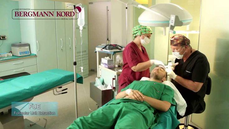 Μεταμόσχευση μαλλιών Fue (Follicular Unit Extraction) | Κλινική Μαλλιών ...
