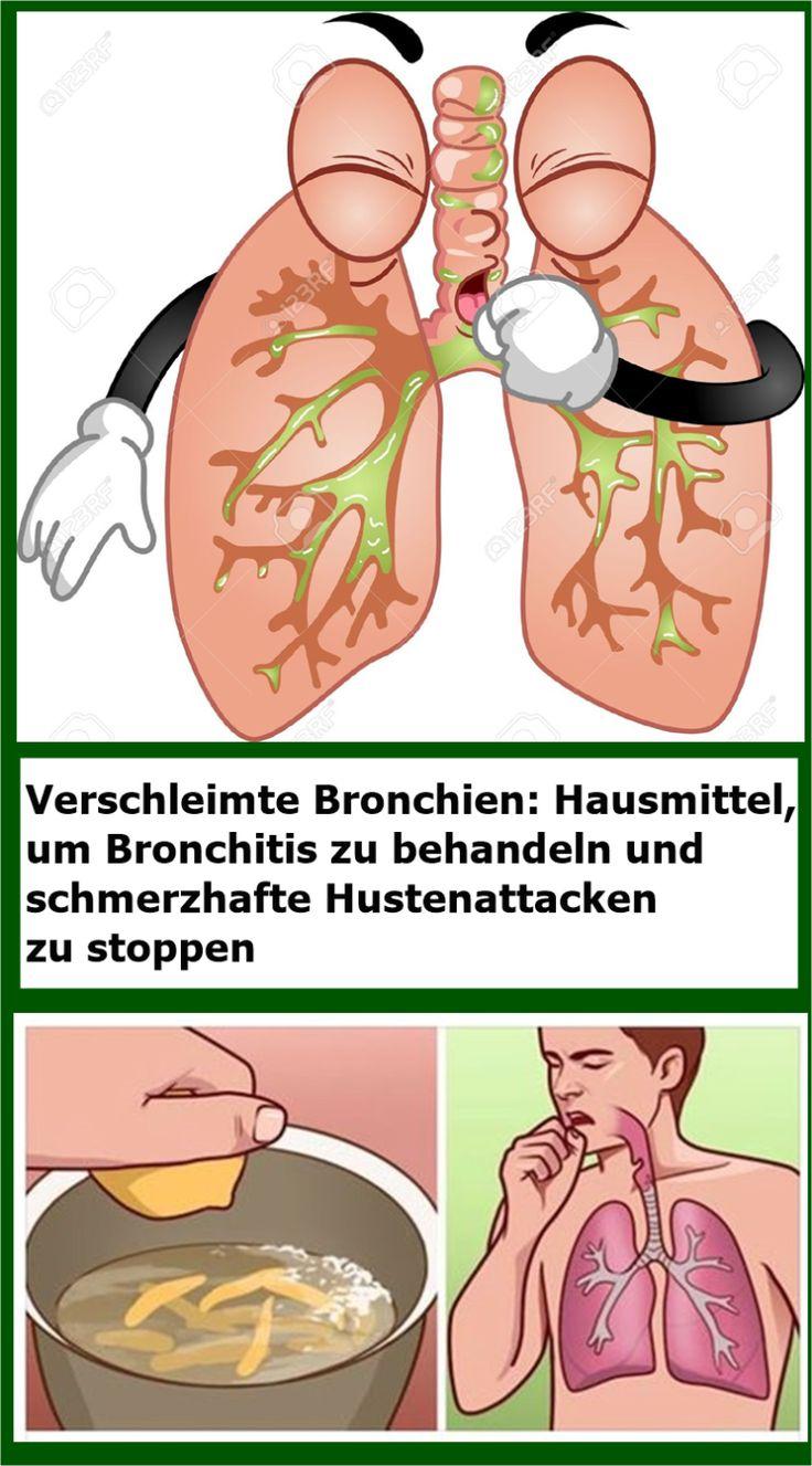Verschleimte Bronchien: Hausmittel, um Bronchitis zu behandeln und schmerzhafte … Angelika Richter