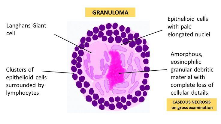 Anatomy Of A Granuloma Via Vijaypatho On Twitter In 2020 Pie Chart Microscopy Pathology