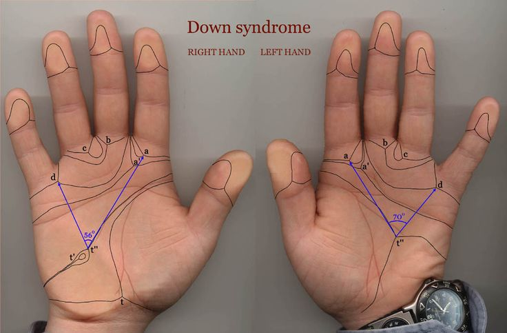 Down Syndrome Hands - find a unusual name for your new baby - coolanduniquebabynames.com