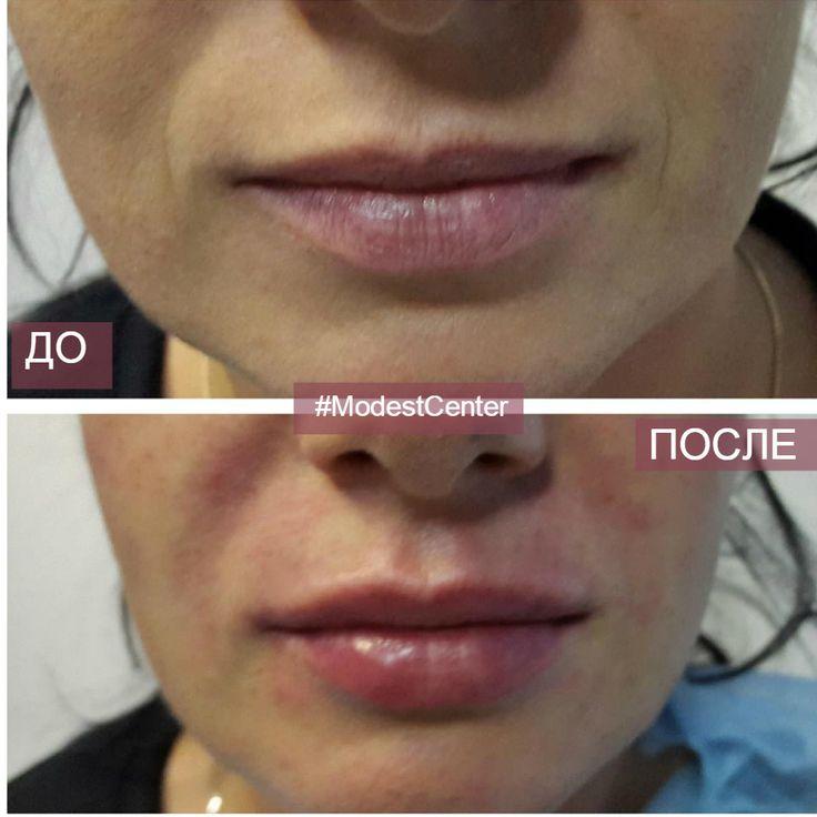УВЕЛИЧЕНИЕ ГУБ. НАСКОЛЬКО ЭТО БОЛЬНО  Область губ, наверное, наибодее чувствительная зона на лице. Существует 2 варианта анестезии при проведении процедуры увеличения губ: 1️⃣инъекционная (с внутренней стороны губы делается несколько обезболивающих уколов); 2️⃣аппликационная (на губы наносится обезболивающий крем).  Первый способ дает более эффективное обезболивание, но при этом имеет место дополнительный отек, который может спровоцировать асимметричное введение препарата, а так же…