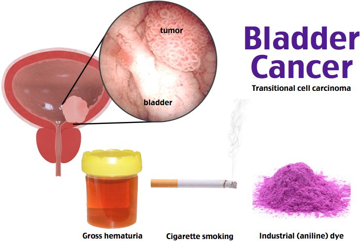 2nd most common GU cancer, M>W, mean age 65yo, RF: cigarette smoking (60%), industrial dyes or solvents (15%), arsenic exposure, chronic cystitis, schistosomiasis, radiation, and cyclophosphamide use. Transitional cell carcinoma most common type. Gross, painless hematuria. Dx: cystourethrosopy, urine cytology, and CT with urography or IVP with renal ultrasound. Tx: resection of visible tumor for superficial cancer/radical cystectomy and chemotherapy.