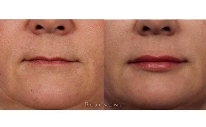 Lip Enhancement Photos - Rejuvent