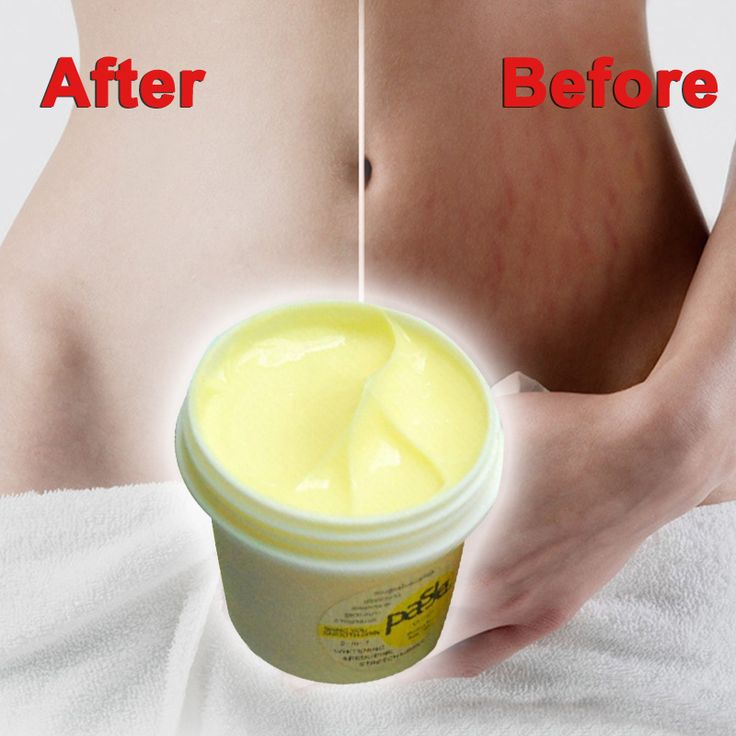 Thailand Skin Body Cream Remove Stretch Marks Treatment Postpartum Repair Whitening CREAM Pregnancy Scar Removal  SSwell