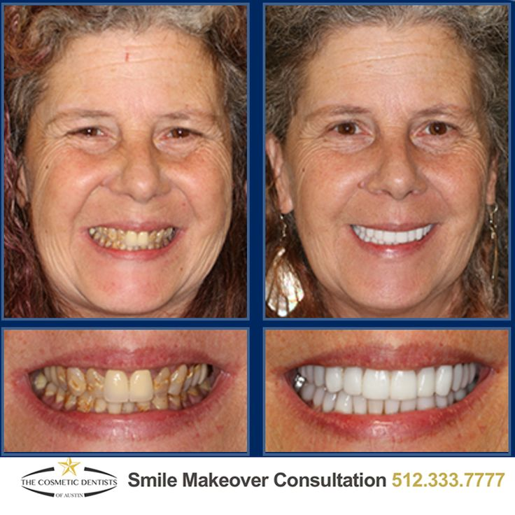 Austin's best Smile Makeovers start at The Cosmetic Dentists of Austin. Call 512-333-7777 today for a free consultation!  #Smile #SmileMore #BeautifulSmile #AustinCosmeticDentist #AustinCosmeticDentistry #BestCosmeticDentist #Dentist #AustinDentist #DentalMakeover #ATX #Austin #CosmeticDentist #CosmeticDentistry #PicOfTheDay  #love #PhotoOfTheDay #2VisitSmileMakeover #Smilemakeover #AustinSmileMakeover #AustinVeneers #VeneersForTeeth #DentalVeneers #PorcelainVeneers