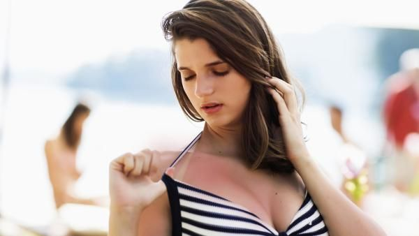 How to soothe peeling, sunburned skin when you've gone full lobster