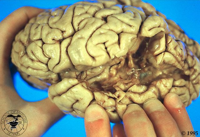 Brain with a lesion causing Wernicke's aphasia