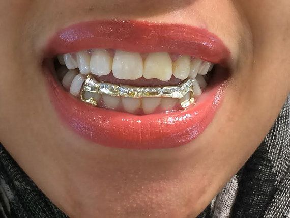 14k gold overlay removable gold teeth grillz by myfamillystore