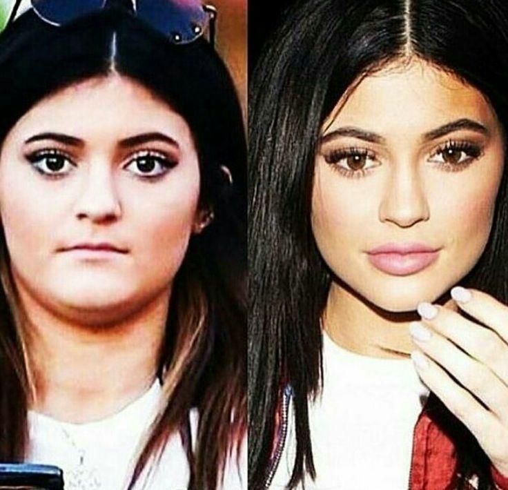 Kylie Jenner's plastic surgery