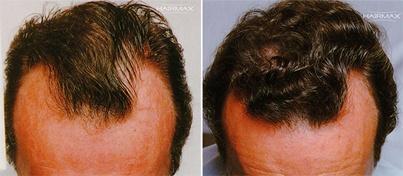 """LaCLINIQUE® Hair Loss Treatment: un protocollo in 3 step, che privilegia l'approccio naturale e """"minimally invasive"""".  Scopri di cosa si tratta:  http://cadutacapelli.laclinique.it/trattamento-anti-caduta-di-capelli/"""