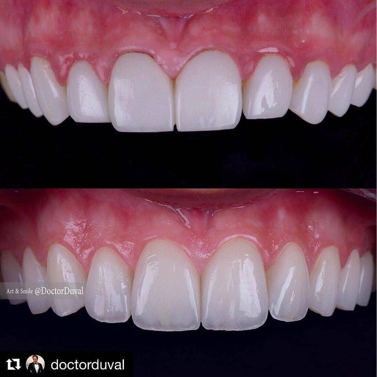 An amazing work keep on smiling. #teeth #dental #odontologia #dentistry #braces #dentalschool #dentalassistant #dentalhygienist #dentalhygieneschool #teethwhitening #cosmeticdentistry  #implants #dentures #rootcanal #odonto #smile #whiteteeth #cavity #cloves #aboutdentistry #dentist #dentista #tooth #medical #dentalhygiene #doctor #health #teething