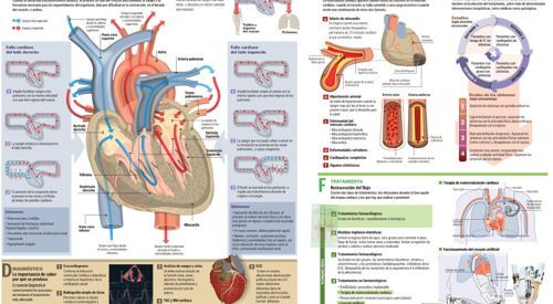 Infográfico sobre la insuficiencia cardíaca