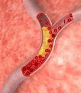 The Truth About High Cholesterol Levels: Low Cholesterol Diet, Low Carb Diet, Healthy Eating, Lower Cholesterol, Health Tips, Healthy Food, High Cholesterol, Copper Create, Cholesterol Levels