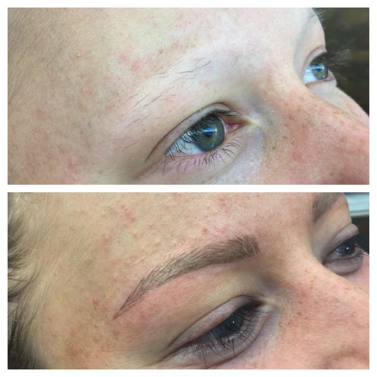 It's not all about vanity. So happy to be able to give this client eyebrows through Brow Embroidery