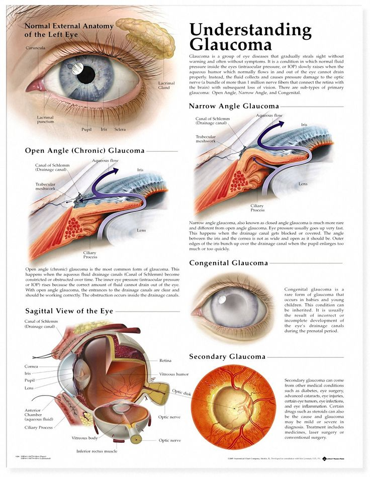My grandpa had Glaucoma disease. This is a chart to understand how Glaucoma happens.