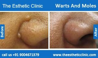 Skin Mole Removal Treatment, Wart Removal Treatment Before After Photos in Mumbai, India