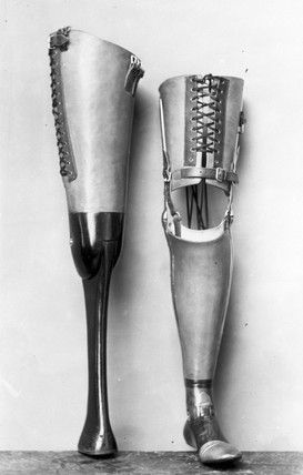 Prosthetic devices for the leg, 1890-1910.