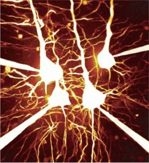 Simultaneous quadruple patch-clamp recording from layer 5 pyramidal neurons in a cortical brain slice.jpg 300×328 píxeles
