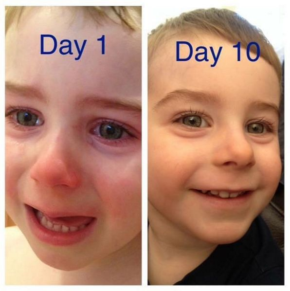 """Callen, 3, started the Aron Regimen 14 months ago. He now only uses the compound on 1 spot on his finger once a day, the rest of his body is in remission. """"We spent almost 2 months on topical steroid withdrawal. The first application of the AR compound gave him a restful night of sleep like never before & it's been wonderful ever since! There IS another choice and it brings healing not only to the skin but to the fear& anxiety we all know as well."""" (Day 1 photo = using neat steroids 2x day.)"""