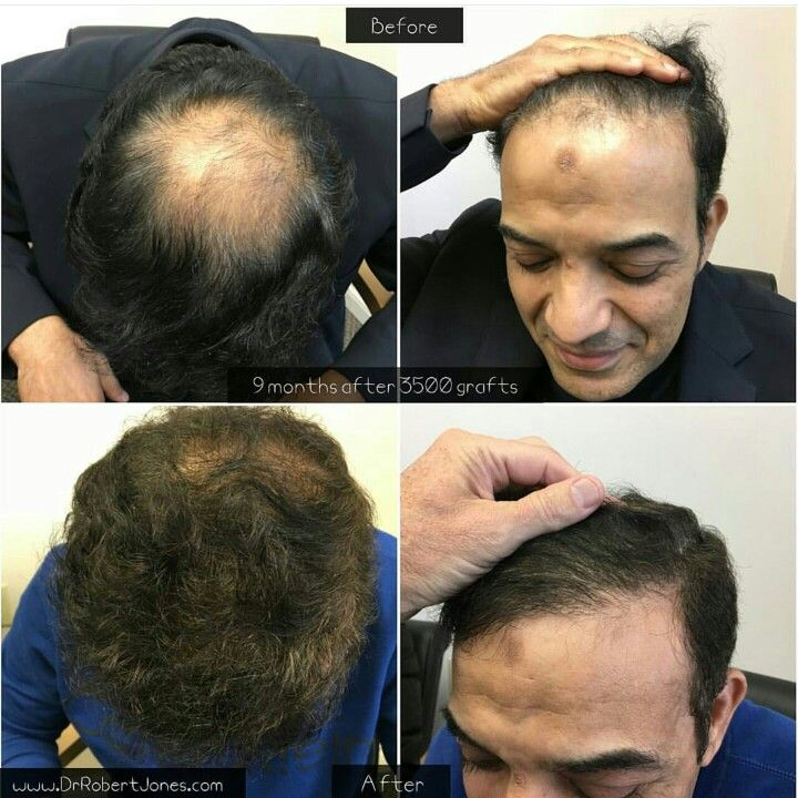 Hair transplant before and after - toronto hair transplant clinic - hair transplant by Dr. Robert Jones - photo taken 9 months after hair transplant