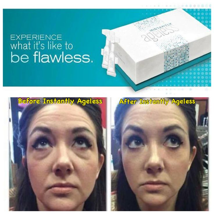 Say bye-bye to under eye bags, puffiness, fine lines, & wrinkles in 2-3 minutes with Instantly Ageless!!   It's like Botox in a box - a special micro cream that creates a flawless look - without needles!  Get yours today & prepare to be amazed!  http://jessicakimbrell.jeunesseglobal.com