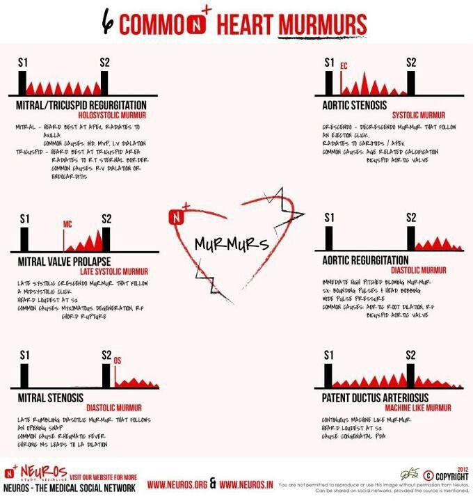 Aortic Stenosis In Children: Heart And Heart Murmur