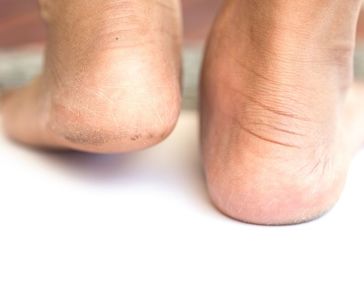 Heel fissures: when the dryness goes too far and you're at risk of infection from cracked heels, we can help #podatrist #missoula #montana