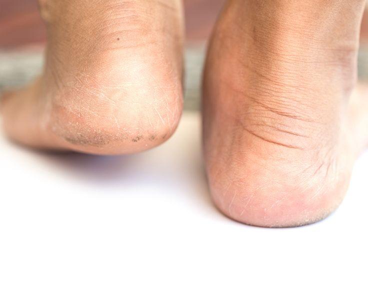 Heel Fissures (cracked heels)