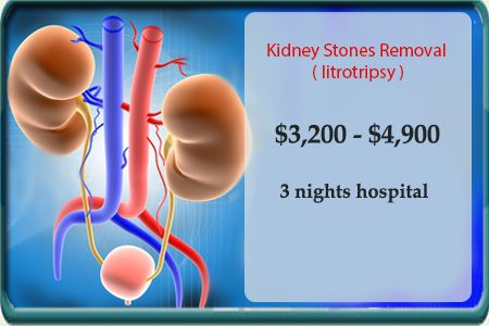 #Kidney #Stones Removal in Mexico