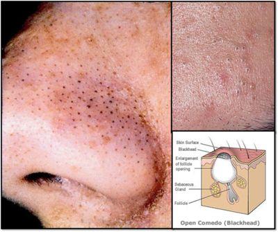 Komedo sering kali muncul pada wajah terutama di area hidung sehingga meresahkan apalagi jika dibiar