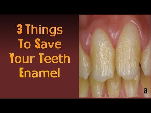 3 Critical Tips That Will Save Your Tooth Enamel Right Away! - YouTube