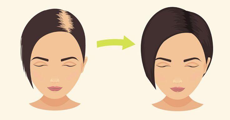 Τρίψτε το  Κεφάλι σας με αυτό το Φυσικό Συστατικό για να Σταματήσετε την Απώλεια Μαλλιών και να Προωθήσετε την Ανάπτυξή τους