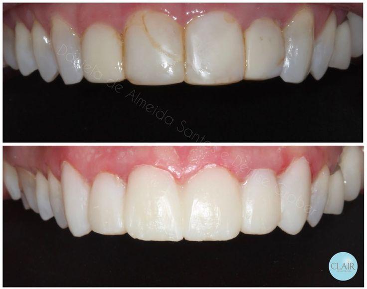Transformação do meu sorriso - Lentes de contato dental provisórias