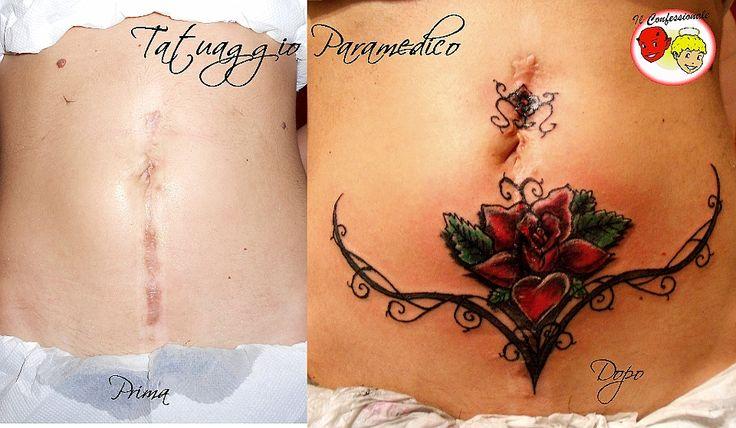 galleria tattoos: Tatuaggio paramedico realizzato per coprire delle vistose cicatrici